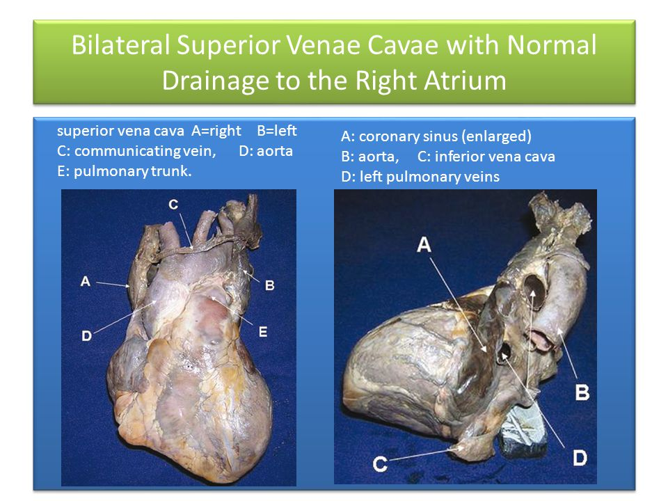 Bilateral Superior Venae Cavae with Normal Drainage to the Right Atrium superior vena cava A=right B=left C: communicating vein, D: aorta E: pulmonary trunk.