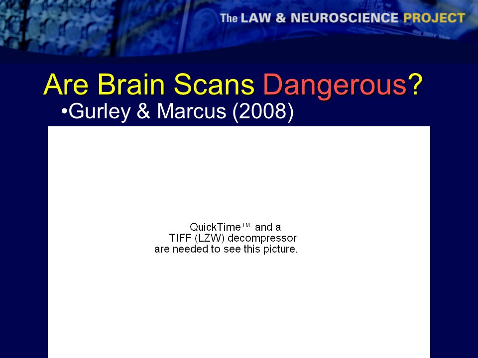 Are Brain Scans Dangerous Gurley & Marcus (2008)