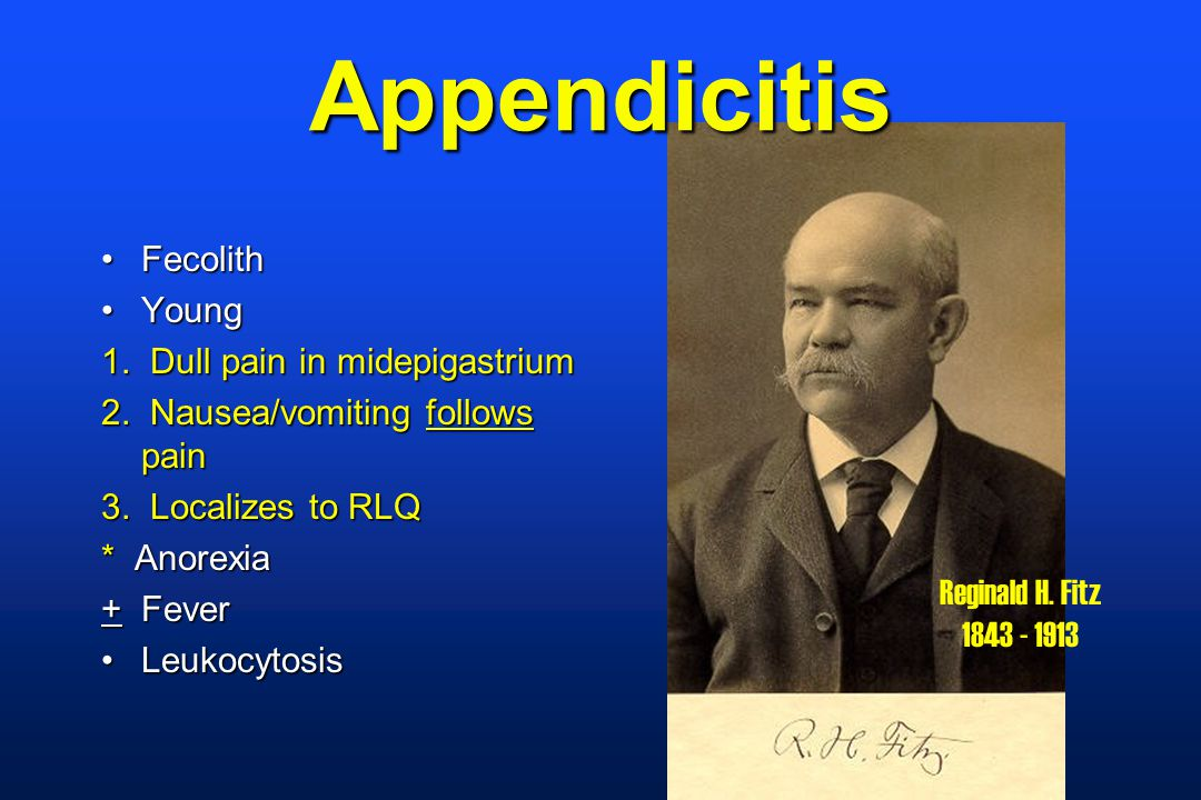 Appendicitis FecolithFecolith YoungYoung 1. Dull pain in midepigastrium 2.
