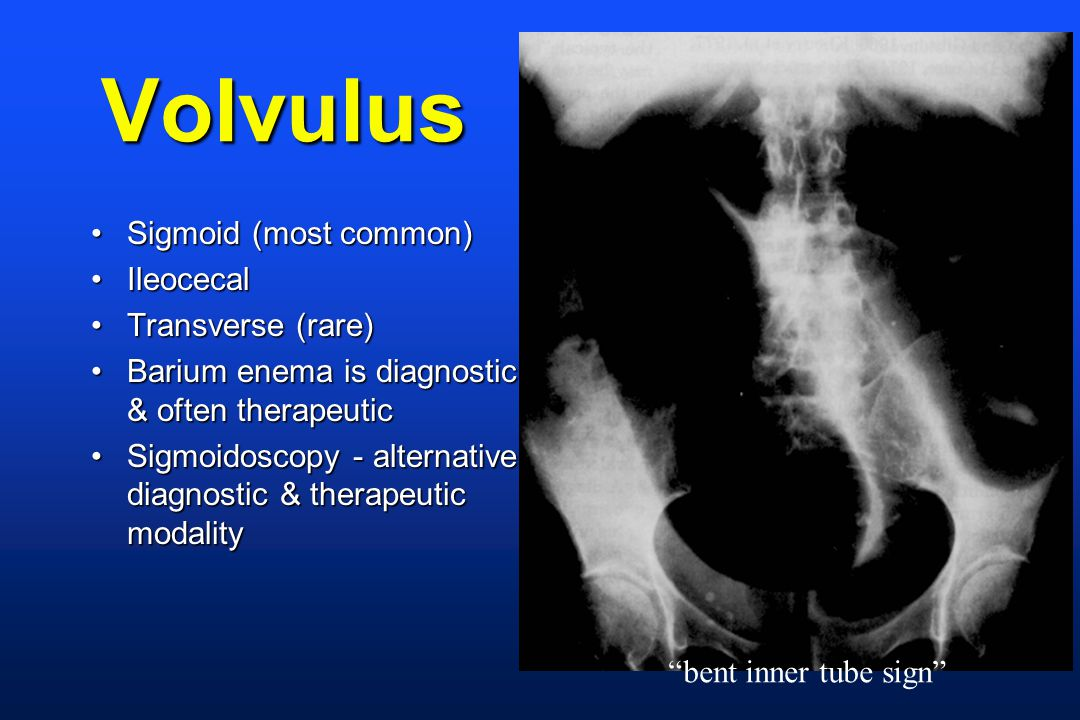 Volvulus Sigmoid (most common)Sigmoid (most common) IleocecalIleocecal Transverse (rare)Transverse (rare) Barium enema is diagnostic & often therapeuticBarium enema is diagnostic & often therapeutic Sigmoidoscopy - alternative diagnostic & therapeutic modalitySigmoidoscopy - alternative diagnostic & therapeutic modality bent inner tube sign