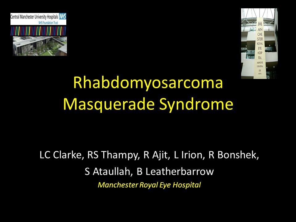 Rhabdomyosarcoma Most common primary orbital malignancy of childhood.