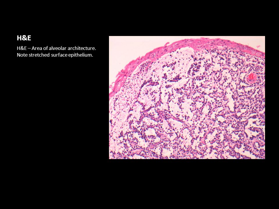 H&E H&E – Area of alveolar architecture. Note stretched surface epithelium.