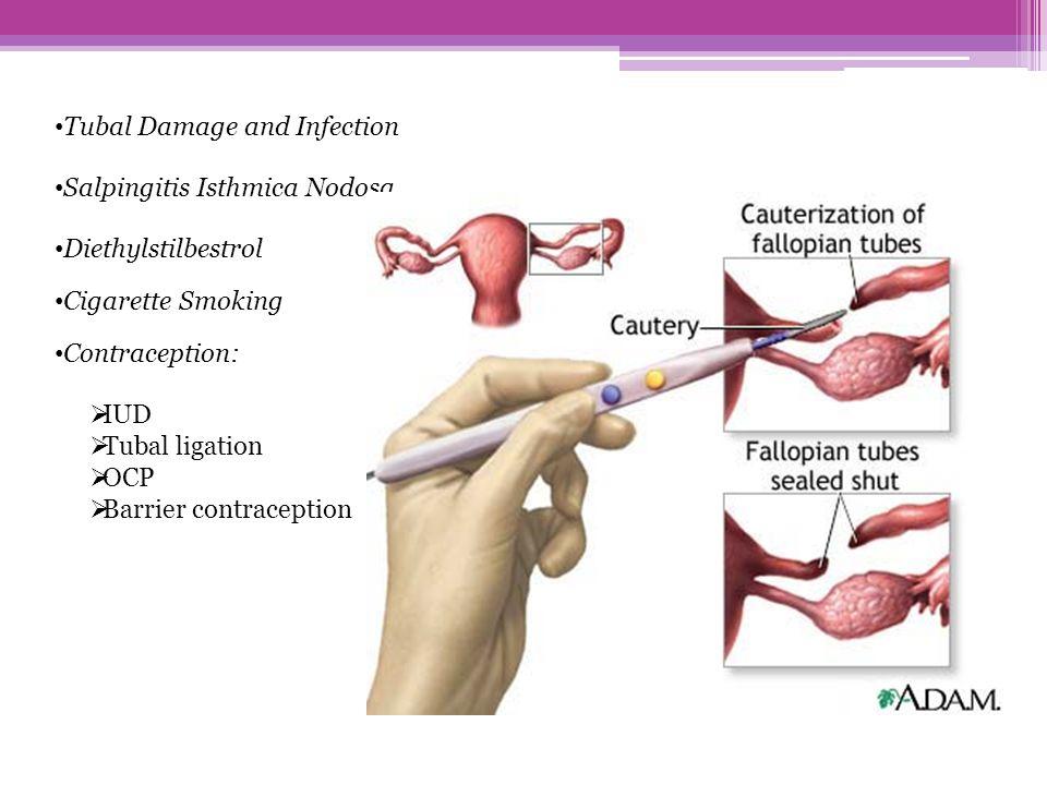 Tubal Damage and Infection Salpingitis Isthmica Nodosa Diethylstilbestrol Cigarette Smoking Contraception:  IUD  Tubal ligation  OCP  Barrier cont