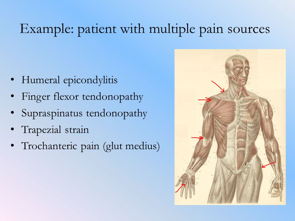 Example: patient with multiple pain sources Humeral epicondylitis Finger flexor tendonopathy Supraspinatus tendonopathy Trapezial strain Trochanteric pain (glut medius)