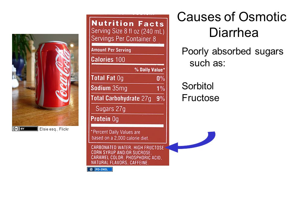 Causes of Osmotic Diarrhea Poorly absorbed sugars such as: Sorbitol Fructose Elsie esq., Flickr