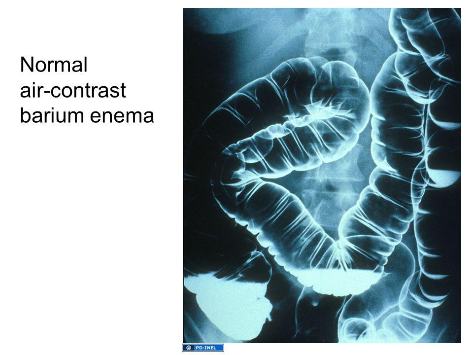 Normal air-contrast barium enema
