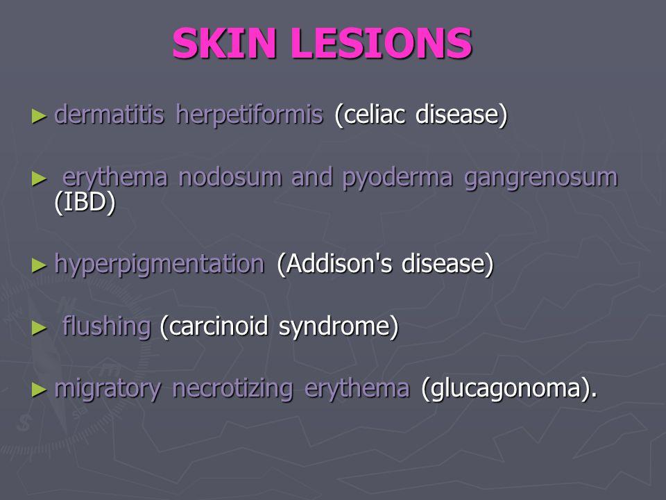 SKIN LESIONS ► dermatitis herpetiformis (celiac disease) ► erythema nodosum and pyoderma gangrenosum (IBD) ► hyperpigmentation (Addison s disease) ► flushing (carcinoid syndrome) ► migratory necrotizing erythema (glucagonoma).