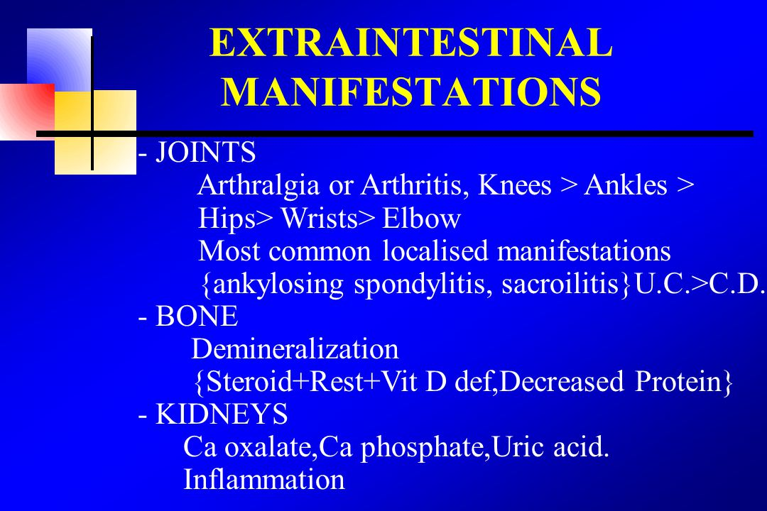 EXTRAINTESTINAL MANIFESTATIONS - JOINTS Arthralgia or Arthritis, Knees > Ankles > Hips> Wrists> Elbow Most common localised manifestations {ankylosing