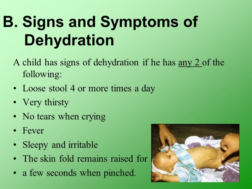B. Signs and Symptoms of Dehydration A child has signs of dehydration if he has any 2 of the following: Loose stool 4 or more times a day Very thirsty
