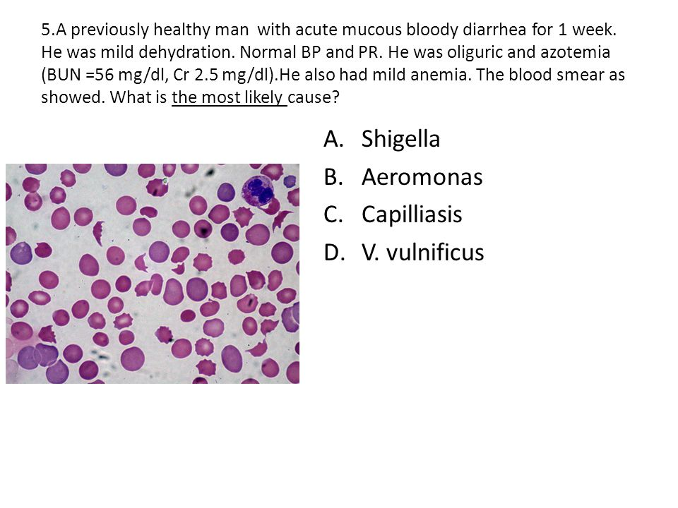 5.A previously healthy man with acute mucous bloody diarrhea for 1 week.