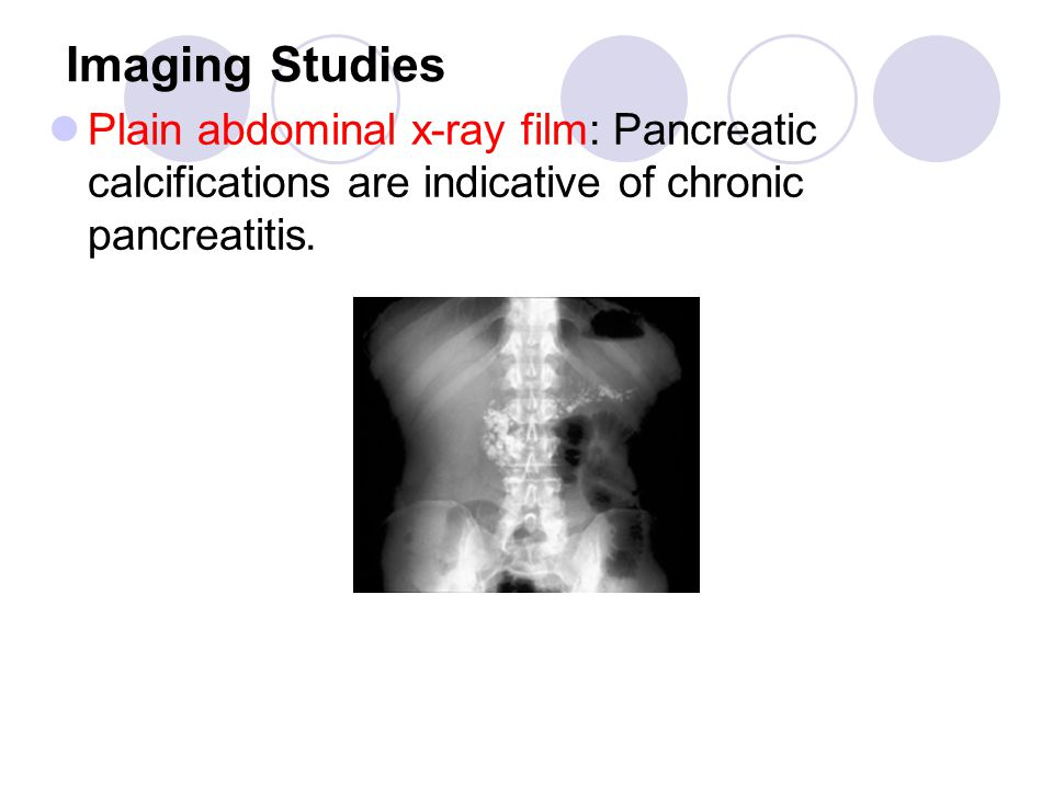 Imaging Studies Plain abdominal x-ray film: Pancreatic calcifications are indicative of chronic pancreatitis.