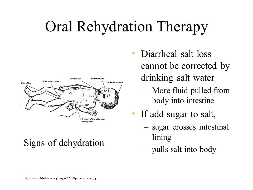 Oral Rehydration Therapy The cheapest and most effective health intervention that can be implemented in the home to decrease childhood mortality –UNICEF Diluted salt water with sugar http://ec.europa.eu/research/headlines/images2/cholera_rehydrate.jpg