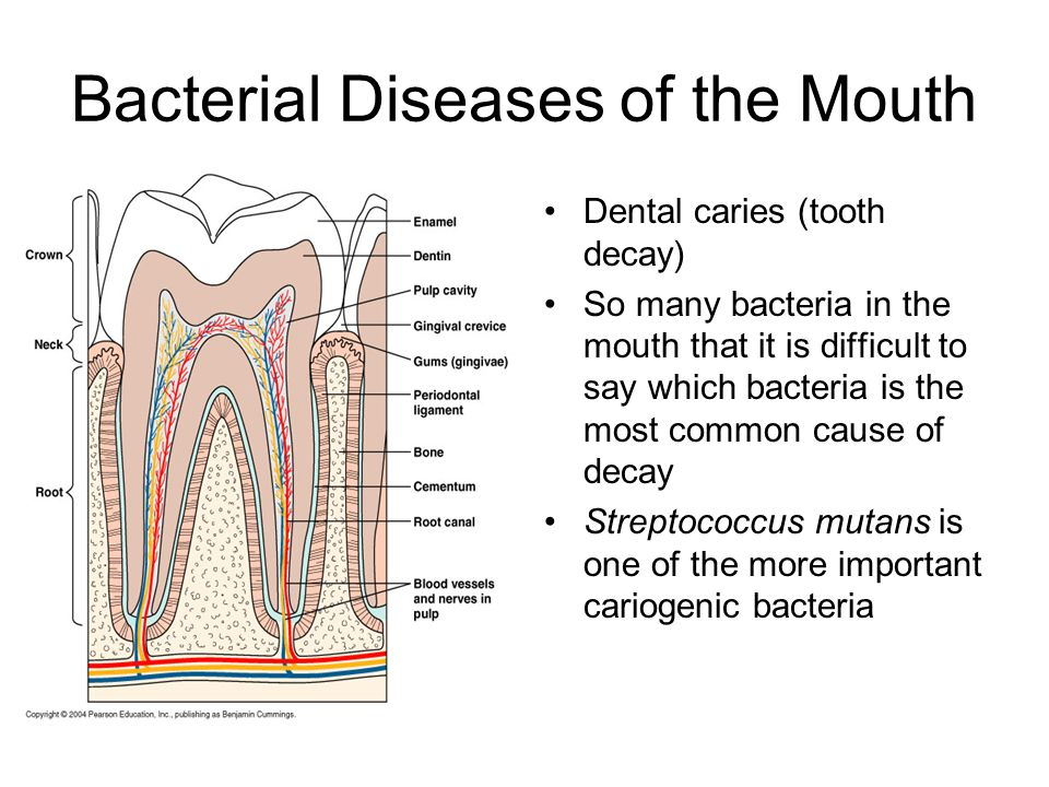 Bacterial Diseases of the Mouth Dental caries (tooth decay) So many bacteria in the mouth that it is difficult to say which bacteria is the most commo