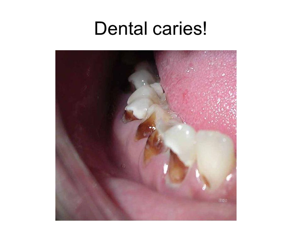 Dental caries!