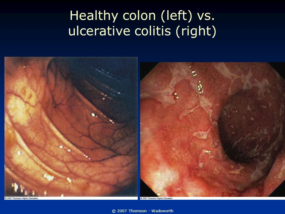 © 2007 Thomson - Wadsworth Healthy colon (left) vs. ulcerative colitis (right)