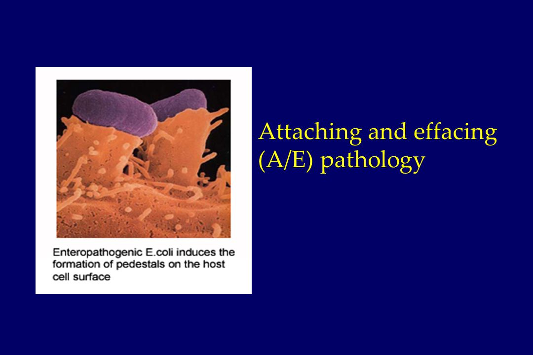 Attaching and effacing (A/E) pathology