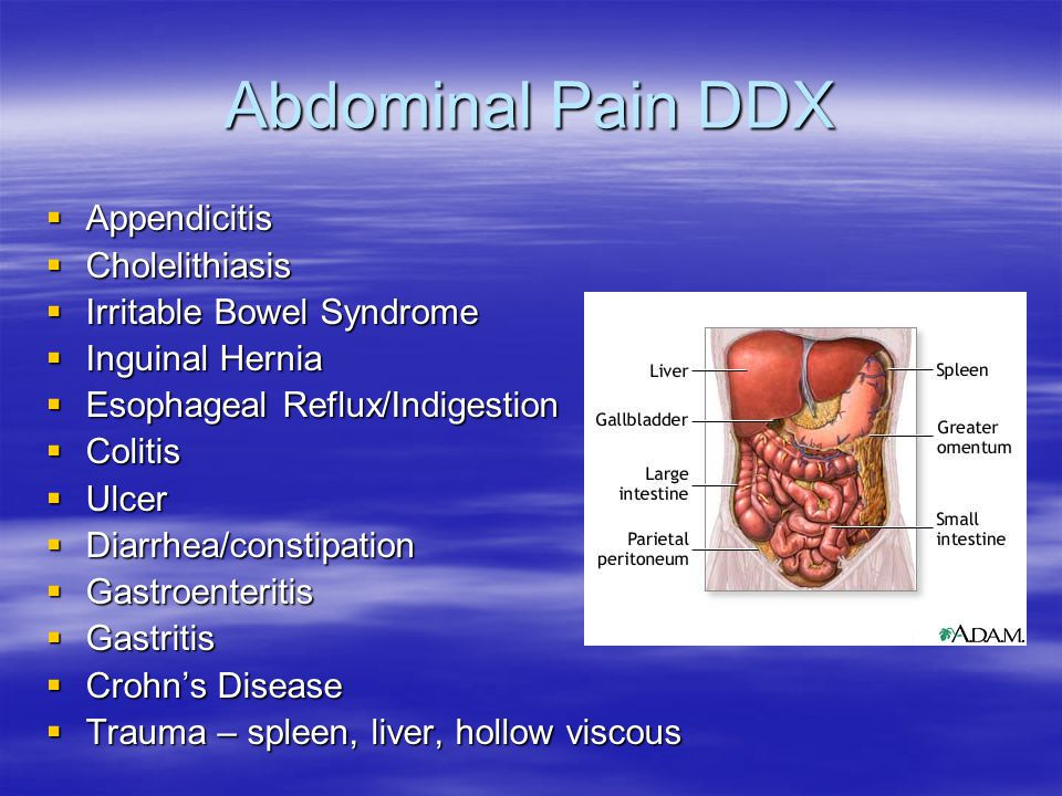 Abdominal Pain DDX  Appendicitis  Cholelithiasis  Irritable Bowel Syndrome  Inguinal Hernia  Esophageal Reflux/Indigestion  Colitis  Ulcer  Di