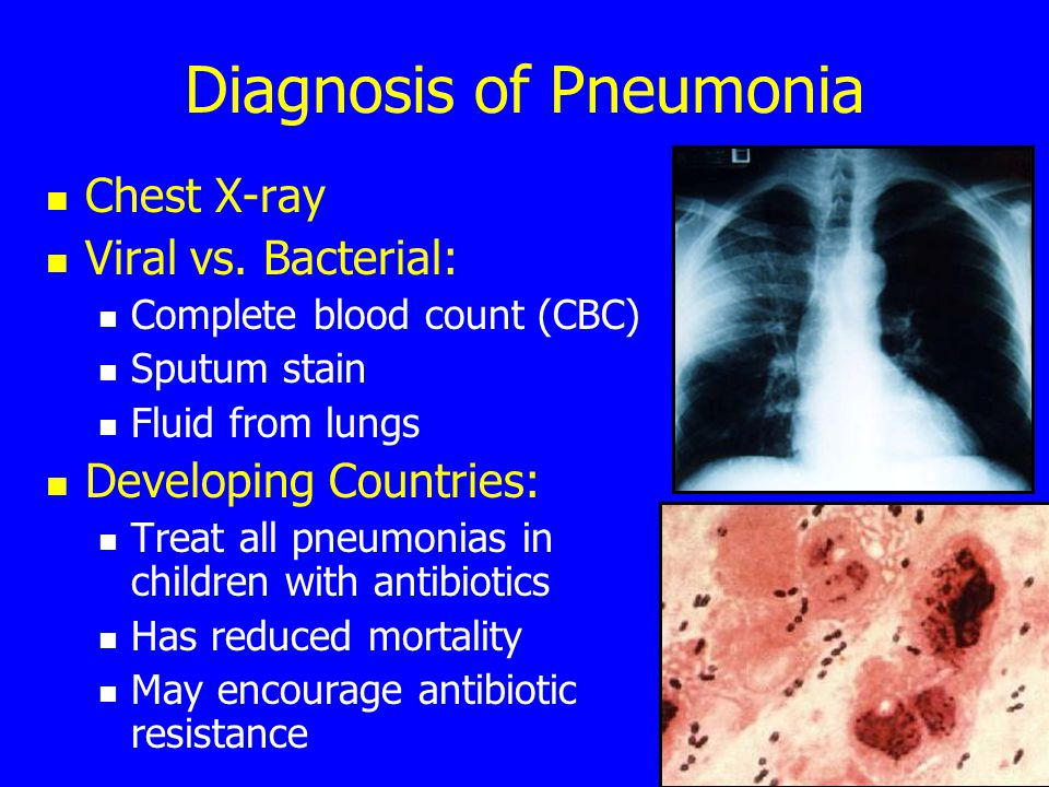 Diagnosis of Pneumonia Chest X-ray Viral vs.
