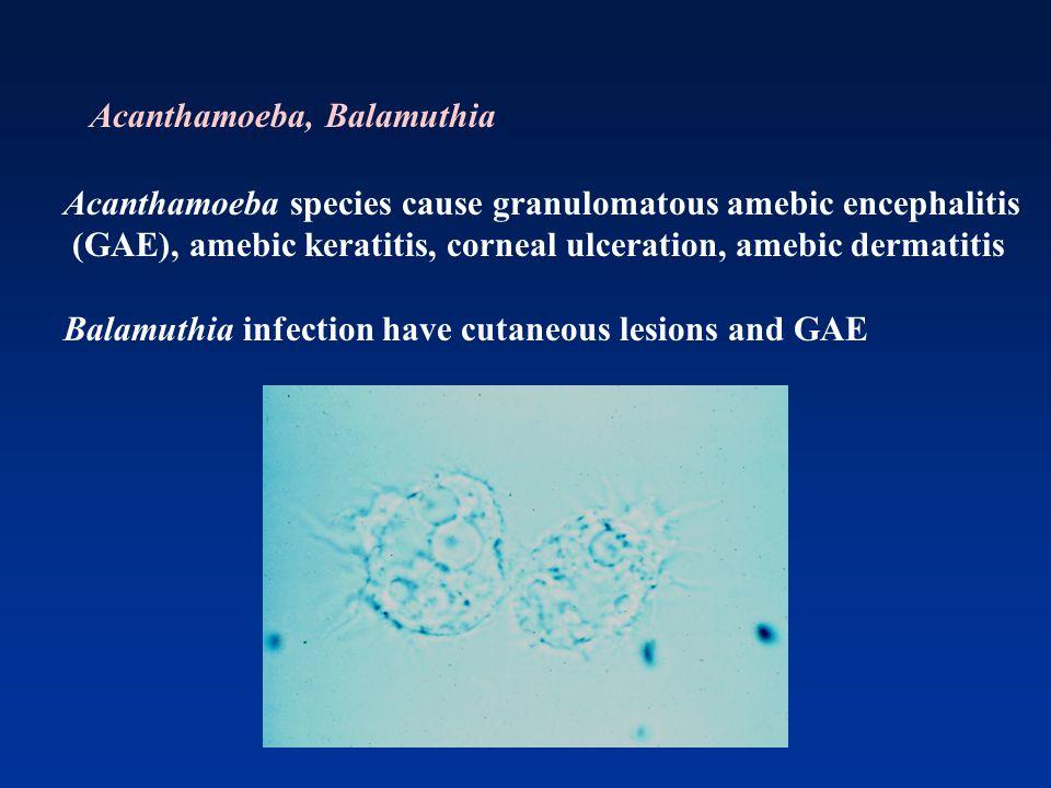 Acanthamoeba species cause granulomatous amebic encephalitis (GAE), amebic keratitis, corneal ulceration, amebic dermatitis Balamuthia infection have