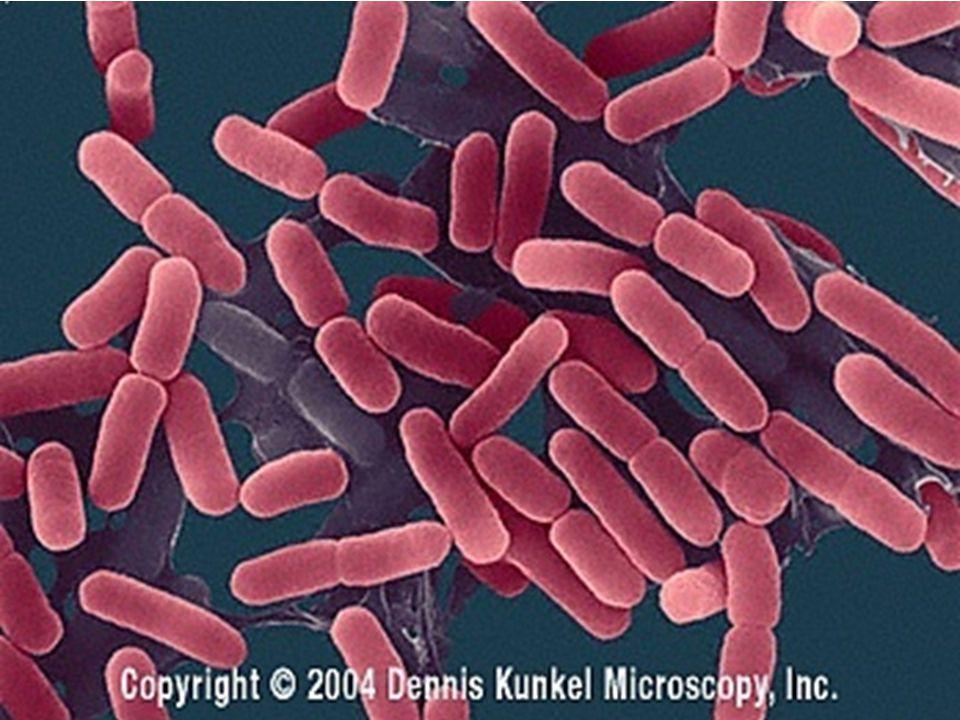 13 Caption: E. coli Escherichia coli