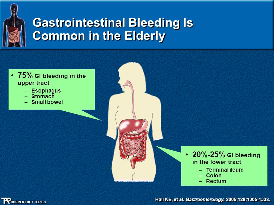 CURRENT HOT TOPICS Gastrointestinal Bleeding Is Common in the Elderly 20%-25% GI bleeding in the lower tract –Terminal ileum –Colon –Rectum 75% GI ble