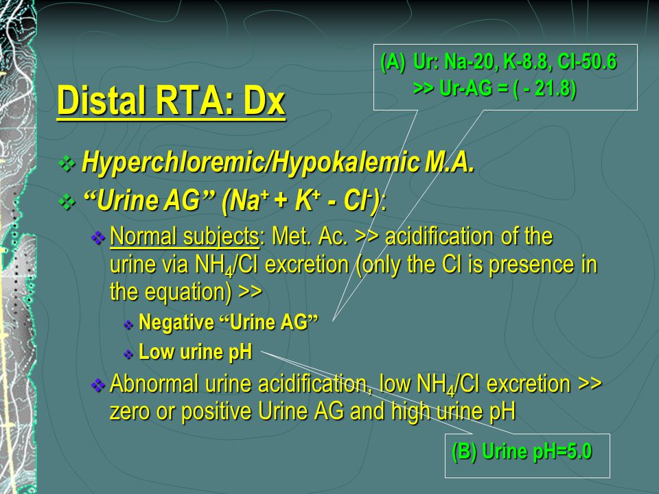 "Distal RTA: Dx  Hyperchloremic/Hypokalemic M.A.  "" Urine AG "" (Na + + K + - Cl - ) :  Normal subjects: Met. Ac. >> acidification of the urine via N"