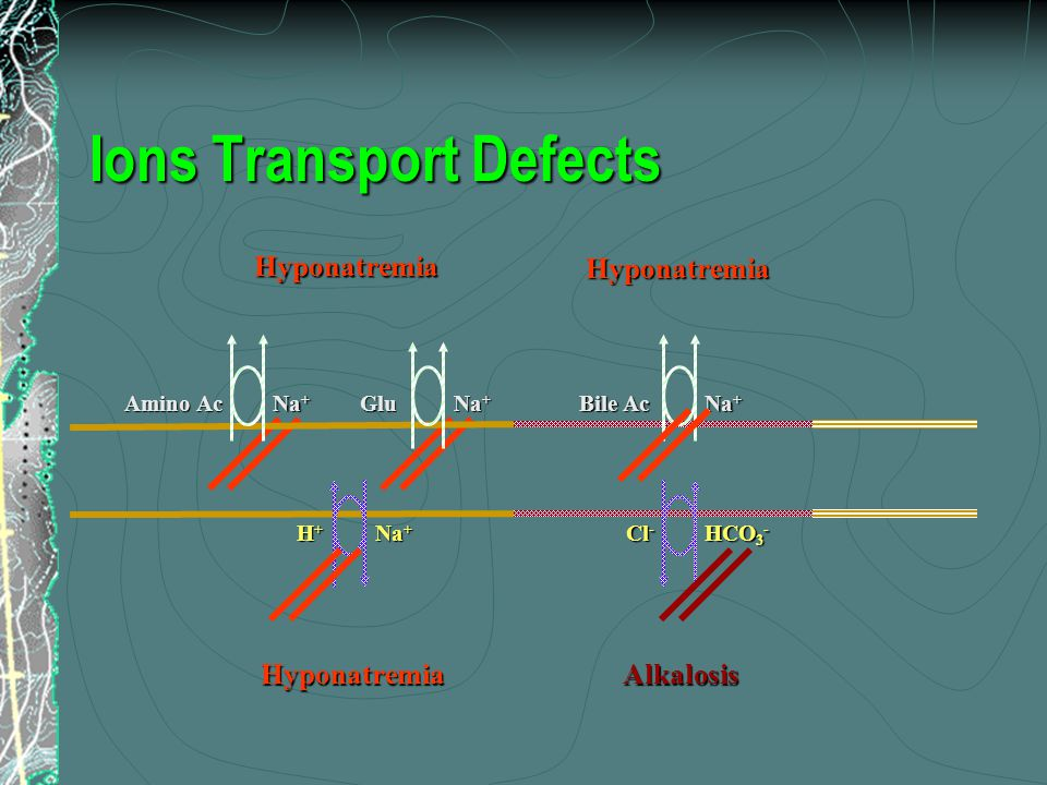 Ions Transport Defects Na + H+H+H+H+ HCO 3 - Cl - HyponatremiaAlkalosis Na + Glu Amino Ac Na + Bile Ac HyponatremiaHyponatremia