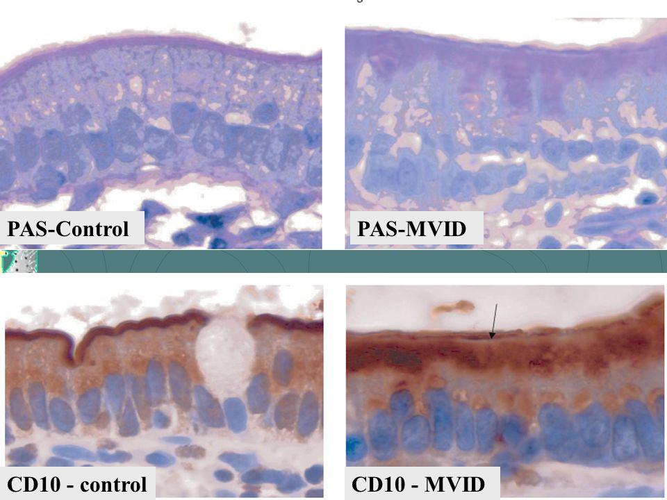PAS-Control CD10 - control PAS-MVID CD10 - MVID