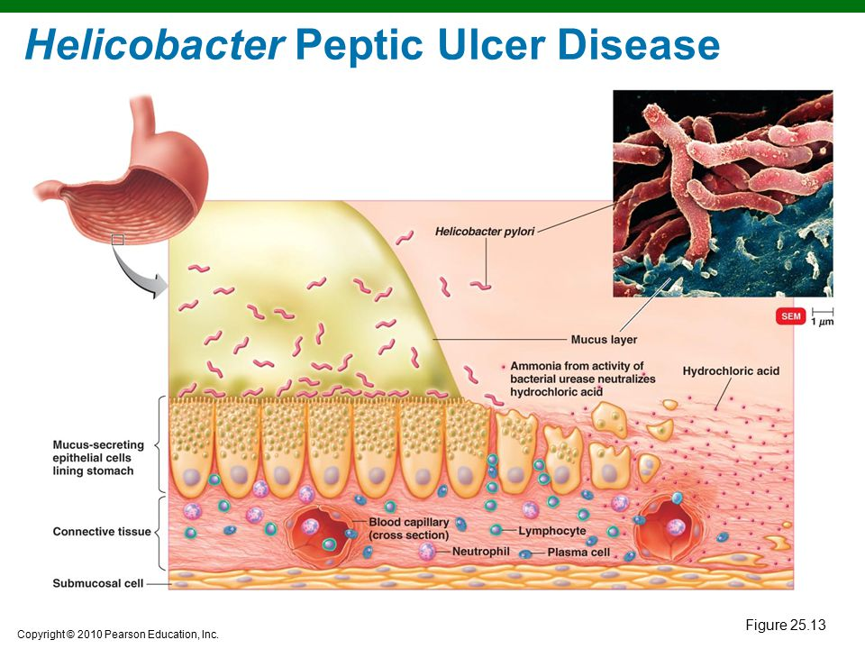 Copyright © 2010 Pearson Education, Inc. Helicobacter Peptic Ulcer Disease Figure 25.13