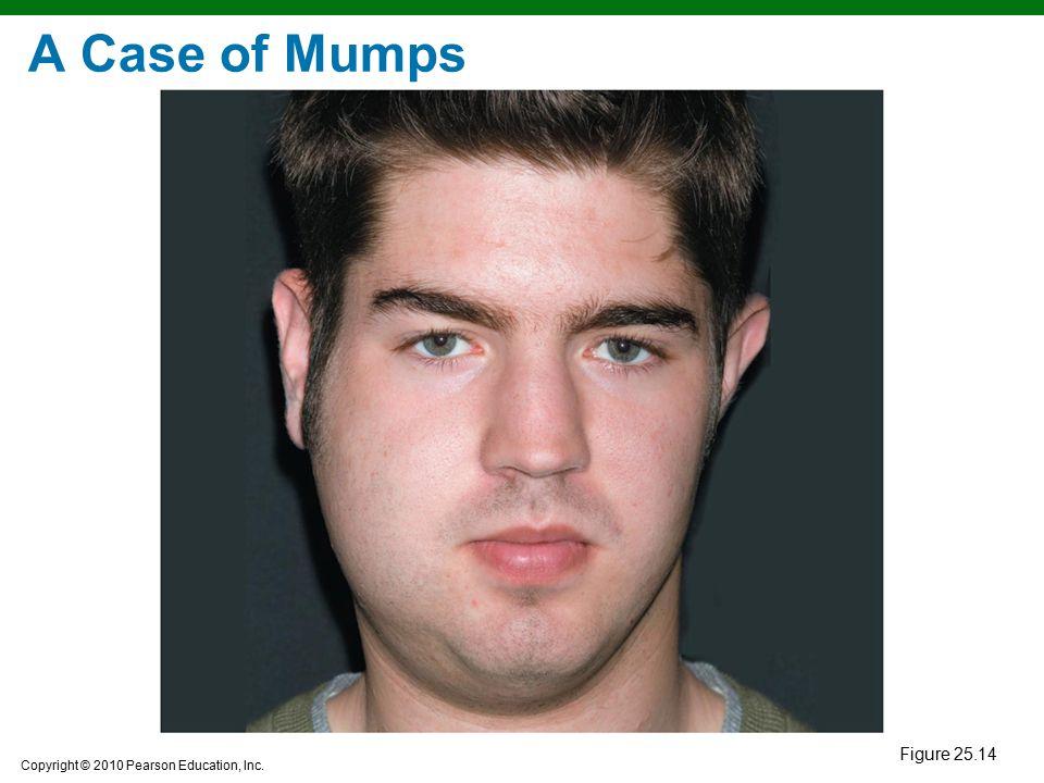 Copyright © 2010 Pearson Education, Inc. A Case of Mumps Figure 25.14
