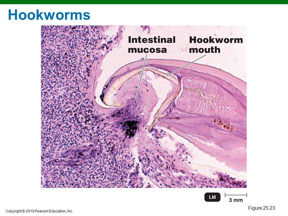 Copyright © 2010 Pearson Education, Inc. Hookworms Figure 25.23