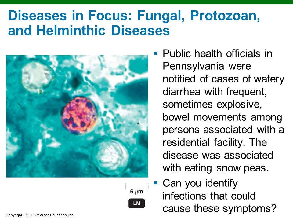 Copyright © 2010 Pearson Education, Inc. Diseases in Focus: Fungal, Protozoan, and Helminthic Diseases  Public health officials in Pennsylvania were