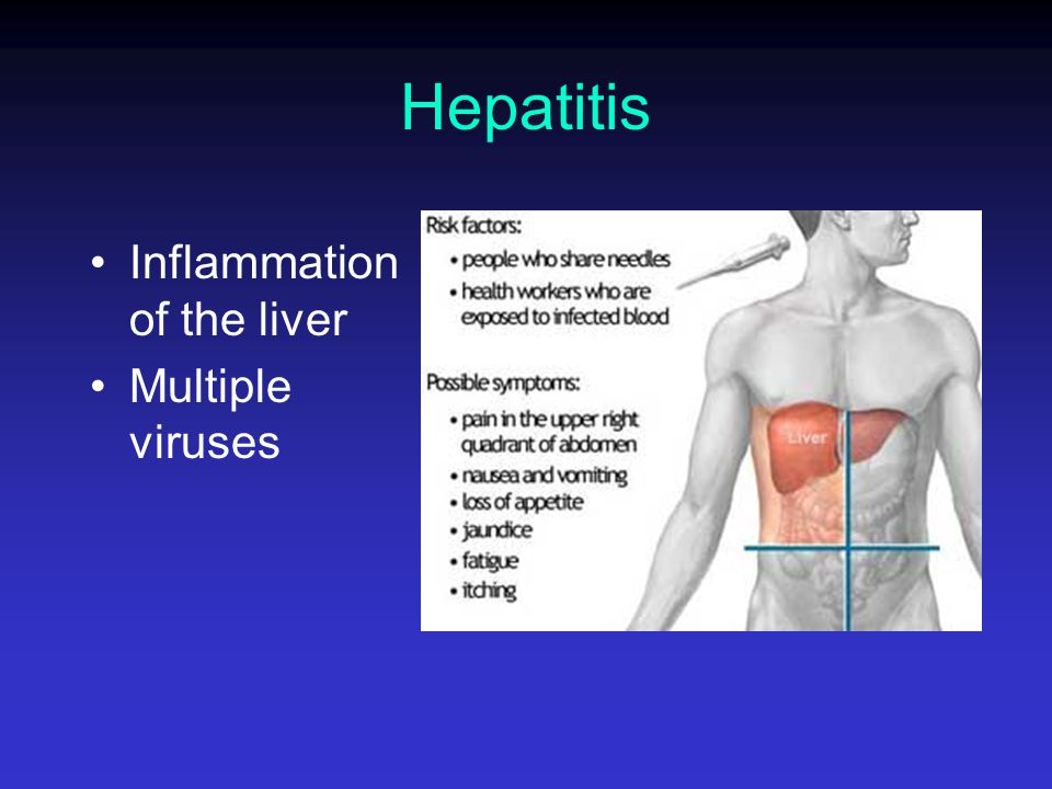 Hepatitis Inflammation of the liver Multiple viruses