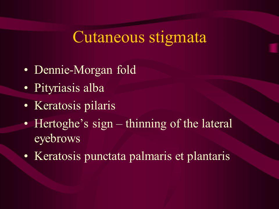 Cutaneous stigmata Dennie-Morgan fold Pityriasis alba Keratosis pilaris Hertoghe's sign – thinning of the lateral eyebrows Keratosis punctata palmaris et plantaris