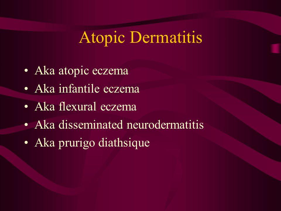 Atopic Dermatitis Aka atopic eczema Aka infantile eczema Aka flexural eczema Aka disseminated neurodermatitis Aka prurigo diathsique