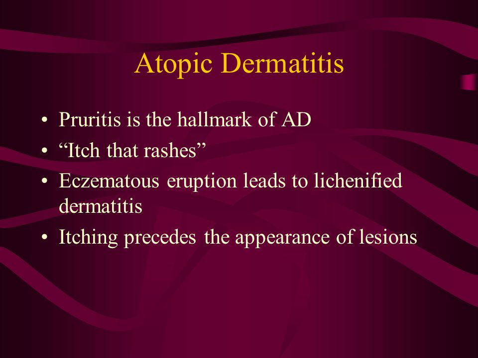Atopic Dermatitis Pruritis is the hallmark of AD Itch that rashes Eczematous eruption leads to lichenified dermatitis Itching precedes the appearance of lesions