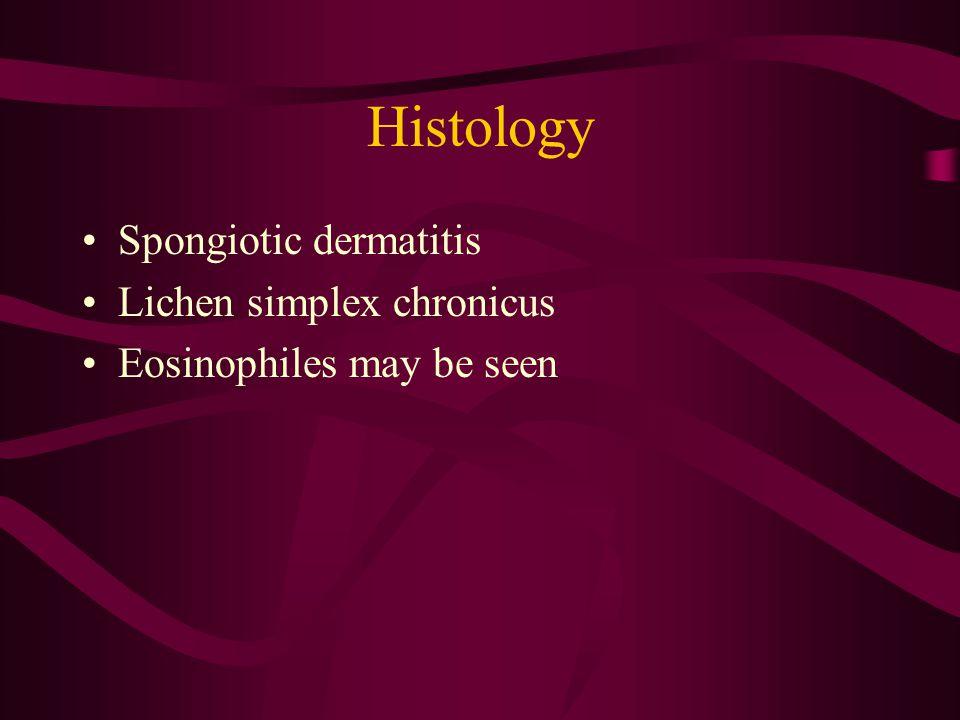 Histology Spongiotic dermatitis Lichen simplex chronicus Eosinophiles may be seen