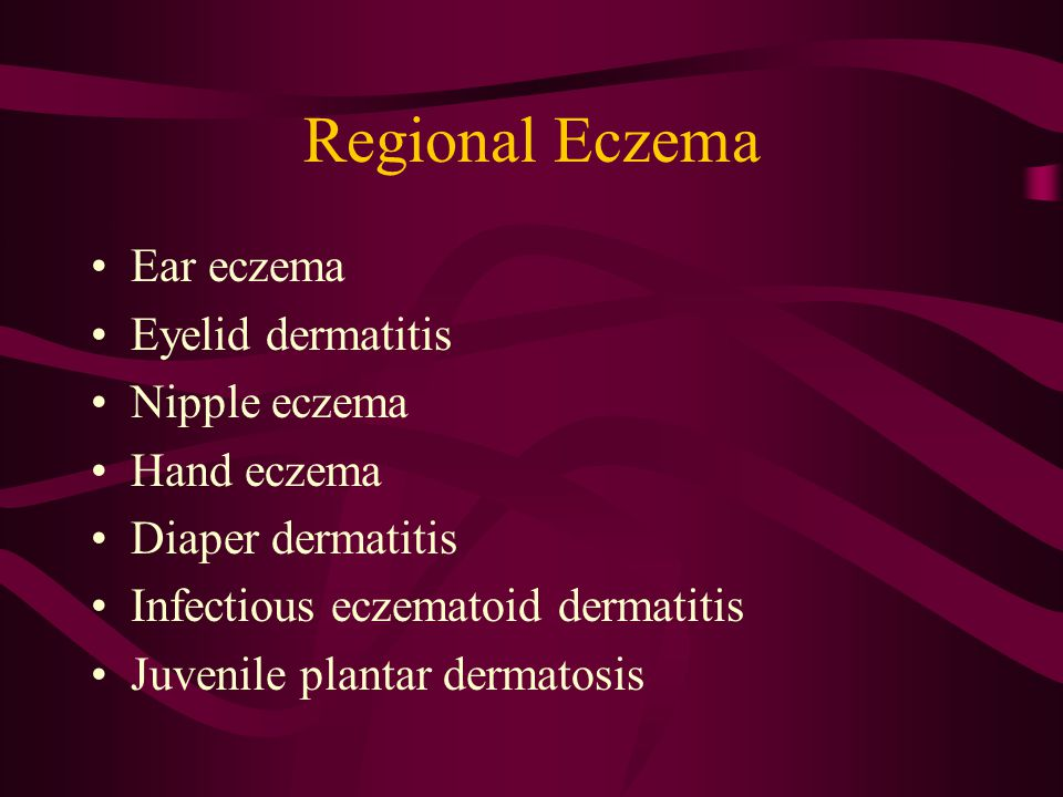 Regional Eczema Ear eczema Eyelid dermatitis Nipple eczema Hand eczema Diaper dermatitis Infectious eczematoid dermatitis Juvenile plantar dermatosis