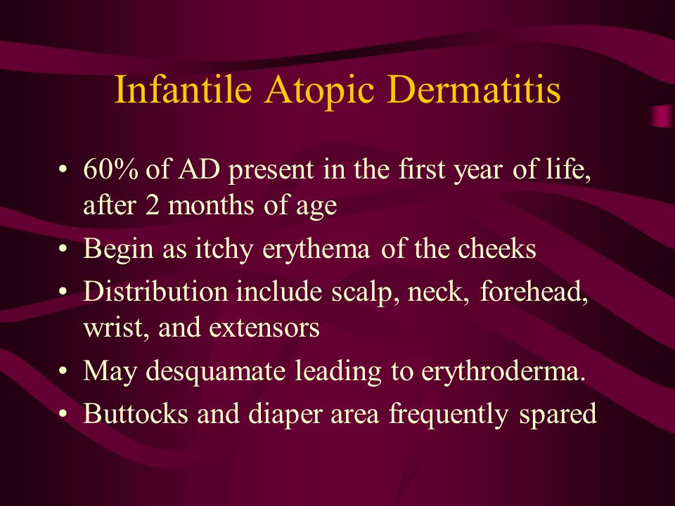 Infantile Atopic Dermatitis 60% of AD present in the first year of life, after 2 months of age Begin as itchy erythema of the cheeks Distribution include scalp, neck, forehead, wrist, and extensors May desquamate leading to erythroderma.
