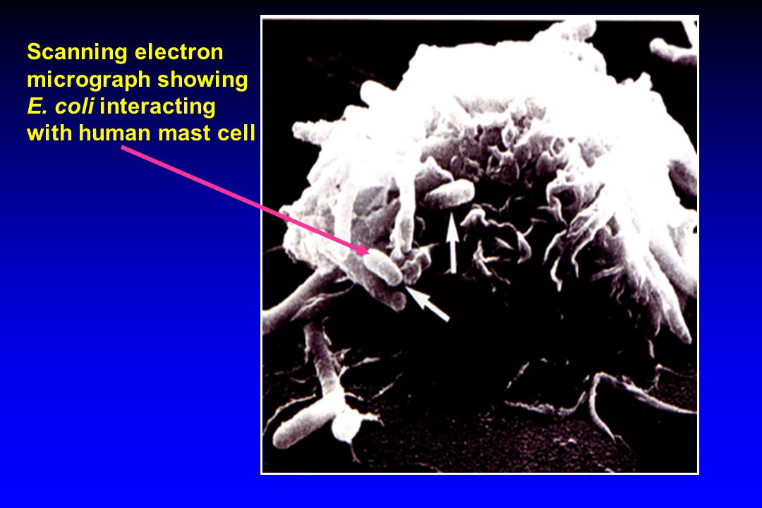 Scanning electron micrograph showing E. coli interacting with human mast cell