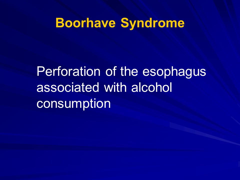 Boorhave Syndrome Perforation of the esophagus associated with alcohol consumption