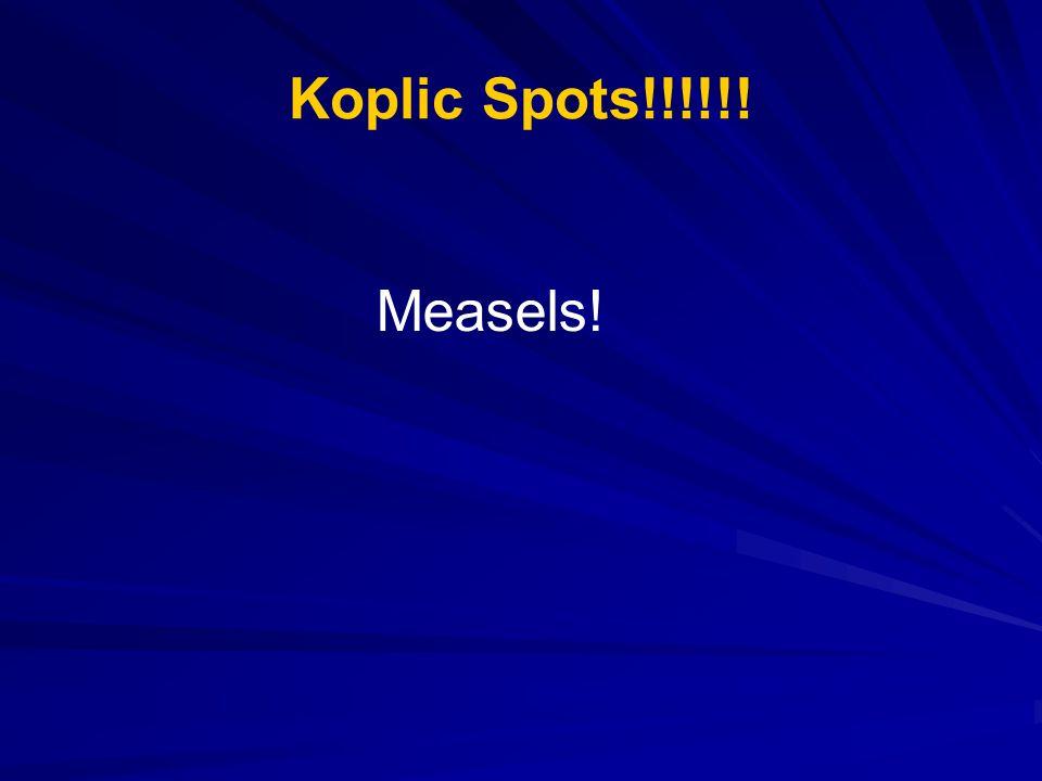 Koplic Spots!!!!!! Measels!