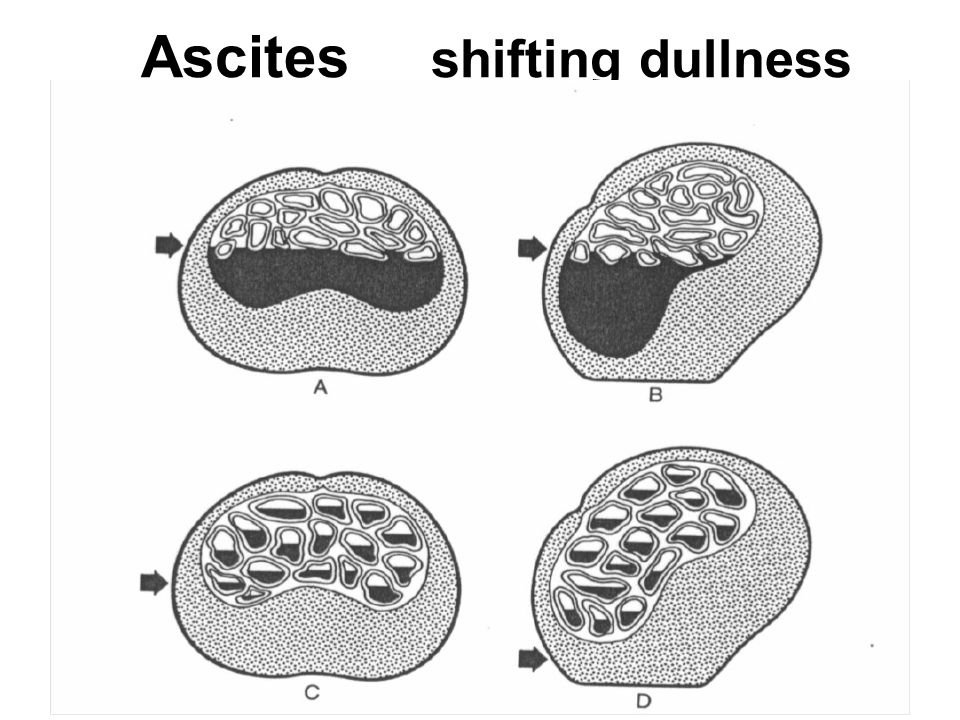 Ascites shifting dullness