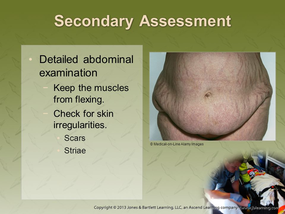 Secondary Assessment Detailed abdominal examination −Keep the muscles from flexing. −Check for skin irregularities. Scars Striae © Medical-on-Line Ala