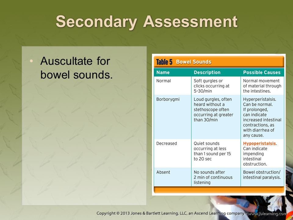 Secondary Assessment Auscultate for bowel sounds.