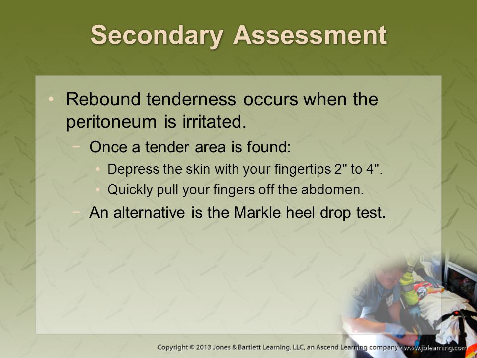 Secondary Assessment Rebound tenderness occurs when the peritoneum is irritated. −Once a tender area is found: Depress the skin with your fingertips 2