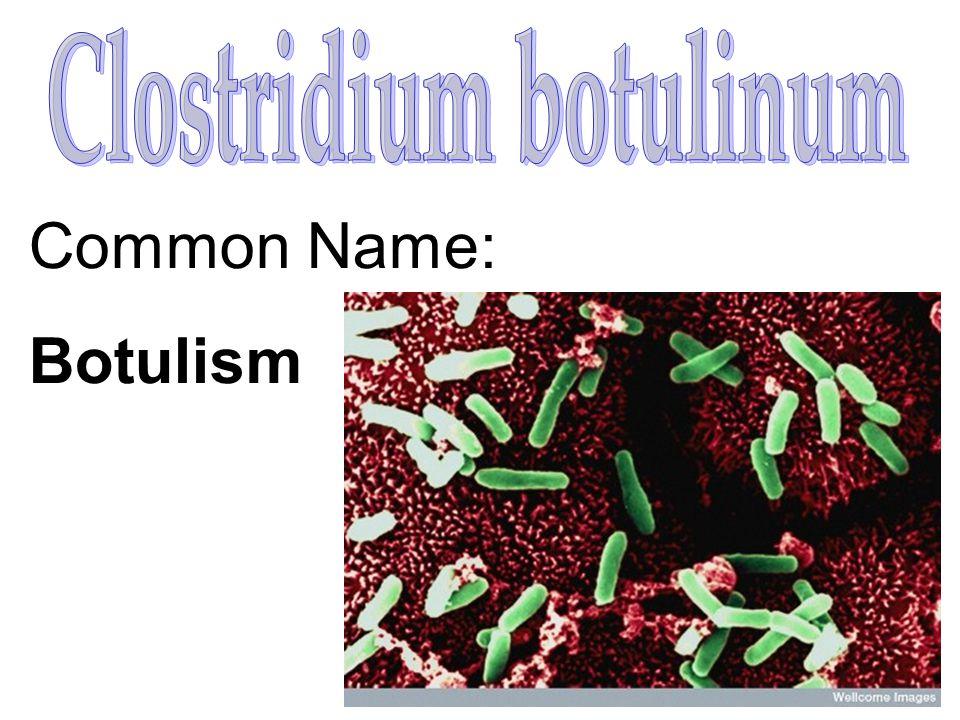 Common Name: Botulism