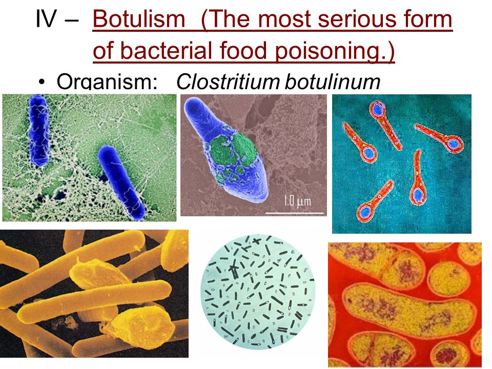IV – Botulism (The most serious form of bacterial food poisoning.) Organism: Clostritium botulinum