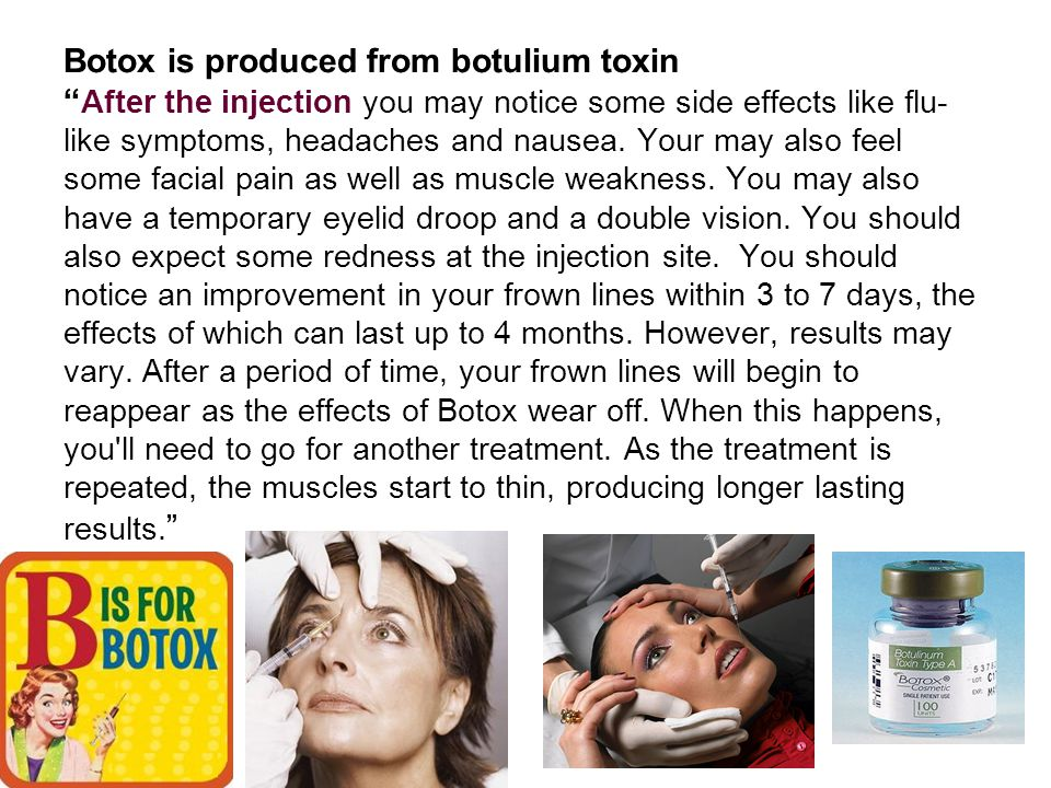 """Botox is produced from botulium toxin """" After the injection you may notice some side effects like flu- like symptoms, headaches and nausea. Your may a"""