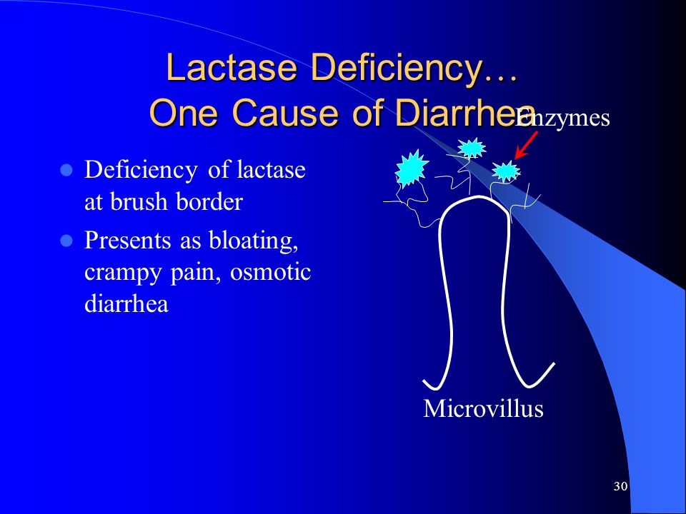 30 Lactase Deficiency … One Cause of Diarrhea Deficiency of lactase at brush border Presents as bloating, crampy pain, osmotic diarrhea Microvillus En